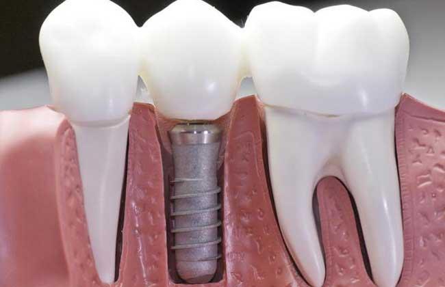 种植牙的寿命