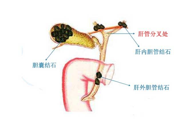 胆结石是怎么形成的?