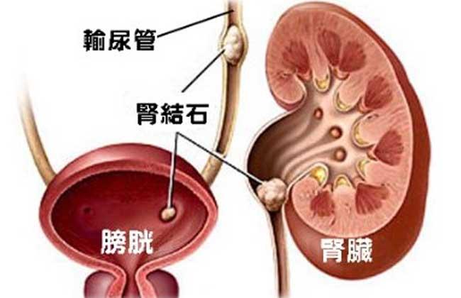 肾结石是怎么形成的
