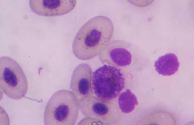 如何预防白色念珠菌感染?