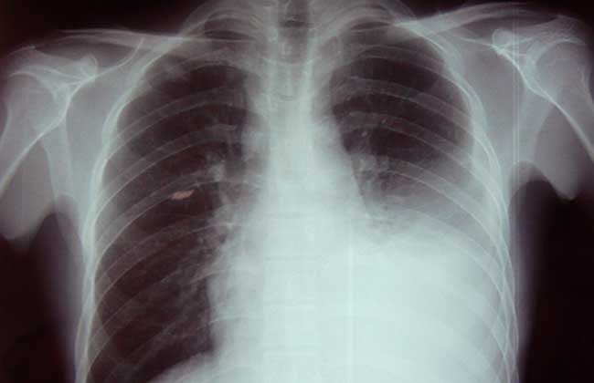 结核性胸膜炎传染吗?