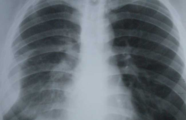 胸膜炎是怎么引起的?
