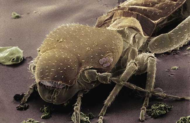 虱子是怎么产生的?