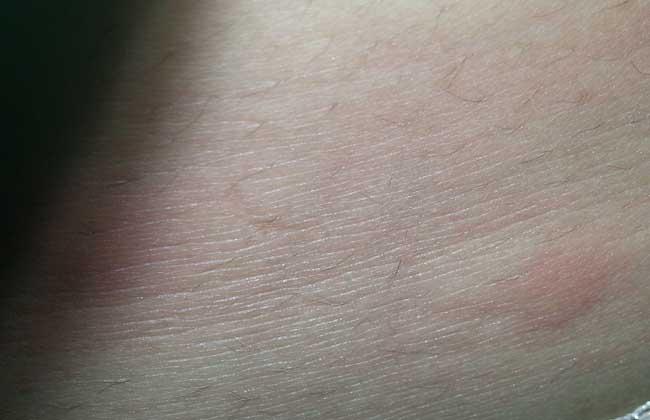 跳蚤咬了有什么症状