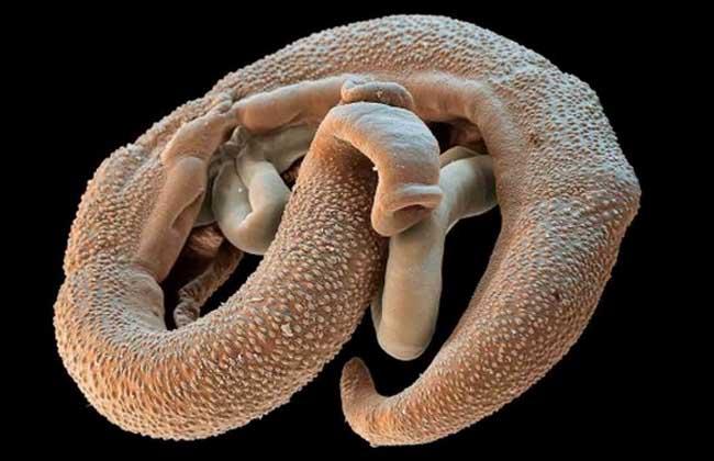 寄生虫图片