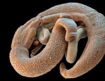 寄生虫种类图片大全