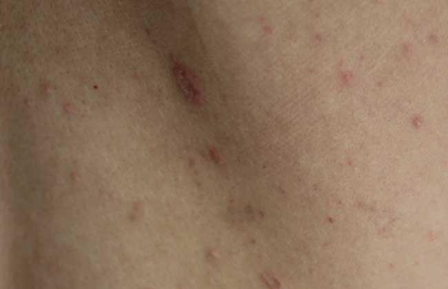 玫瑰疱疹是怎么引起的?