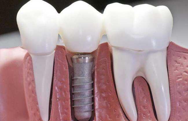 种植牙齿一颗多少钱?