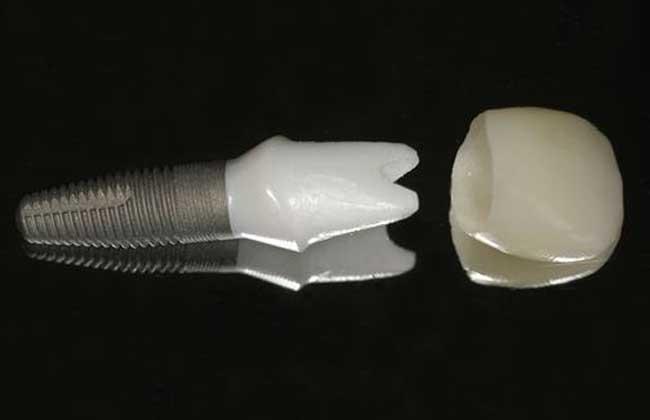 种植牙齿一颗多少钱