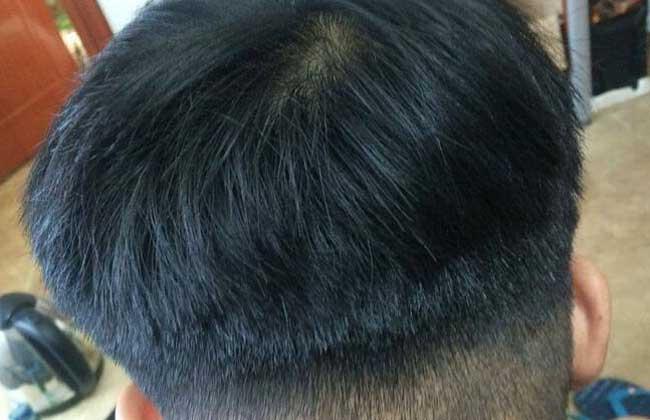 头发种植价格
