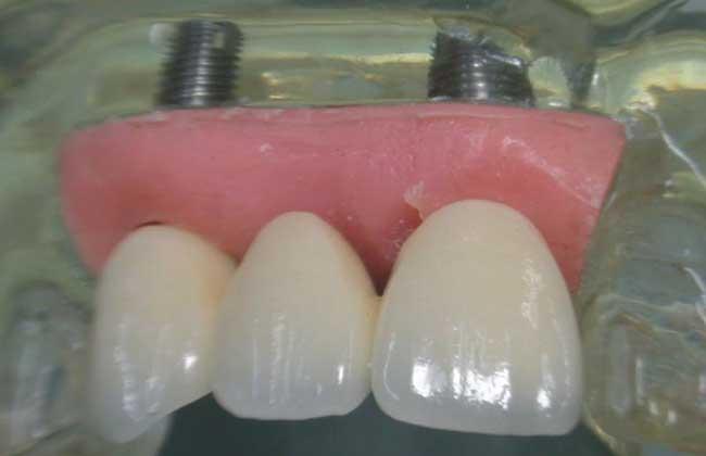 种植牙的危害