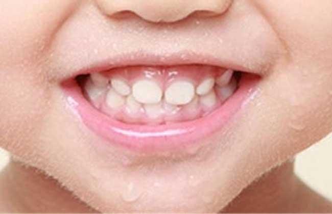 人有多少颗牙齿
