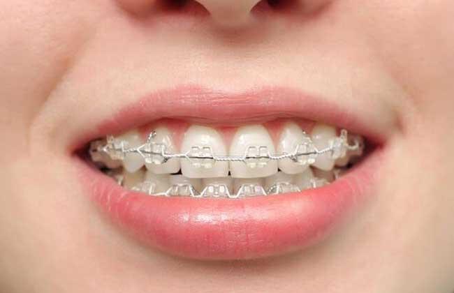 牙齿黄了怎么变白?
