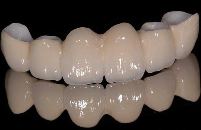 牙齿出血是什么原因?