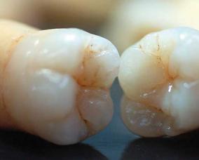 正常成年人有多少颗牙齿?