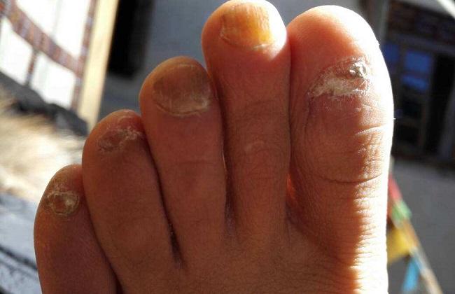 灰指甲的治疗方法